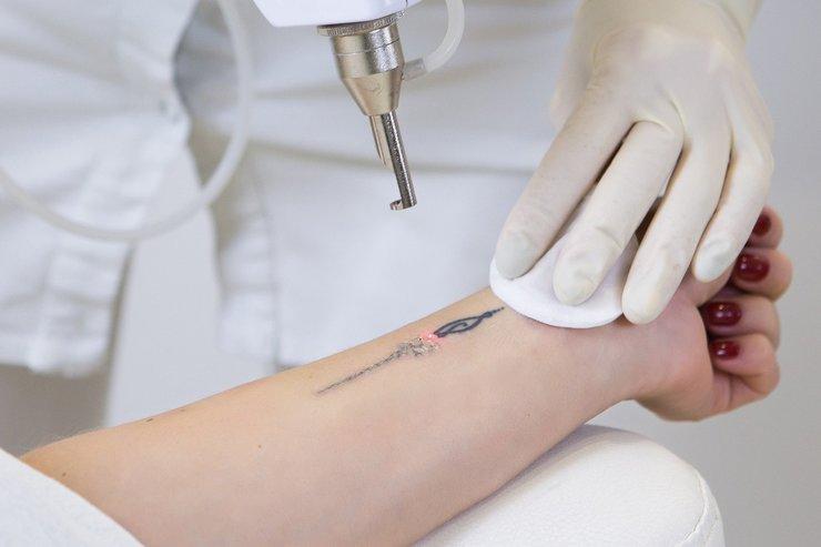 Переделка или удаление тату